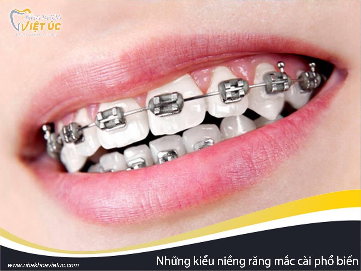 Niềng răng Hà Nội