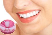 bọc răng sứ Hà Nội