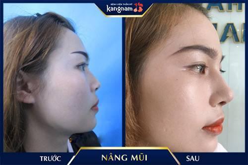 nâng mũi Hà Nội - Kangnam