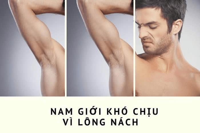 triệt lông cho nam giới tại Hà Nội